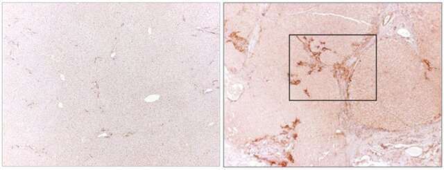 Selective, toxin-bearing antibodies could help treat liver fibrosis