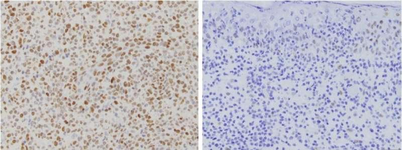 Skin cancer harbors targetable mutation