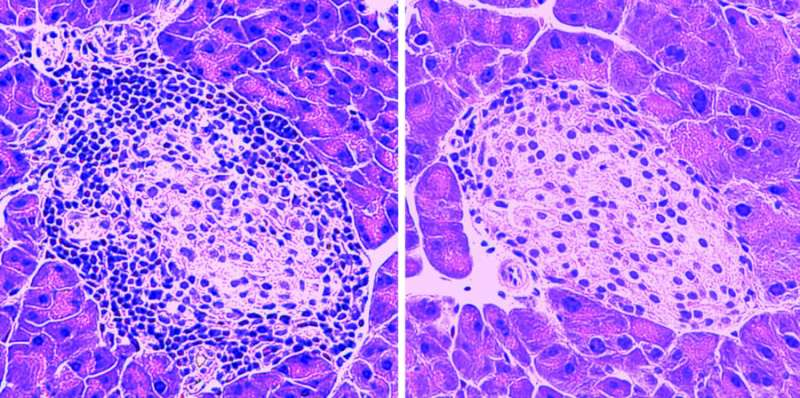 Small protein protects pancreatic cells in model of type 1 diabetes
