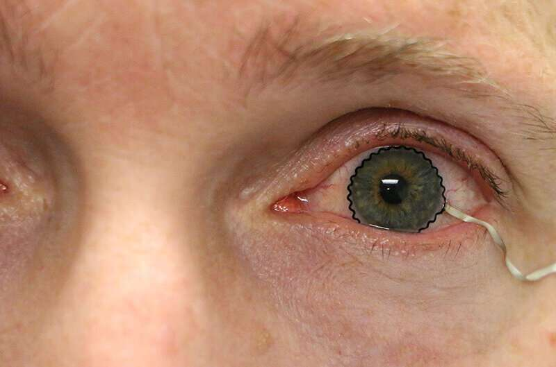 Soft contact lenses eyed as new solutions to monitor ocular diseases