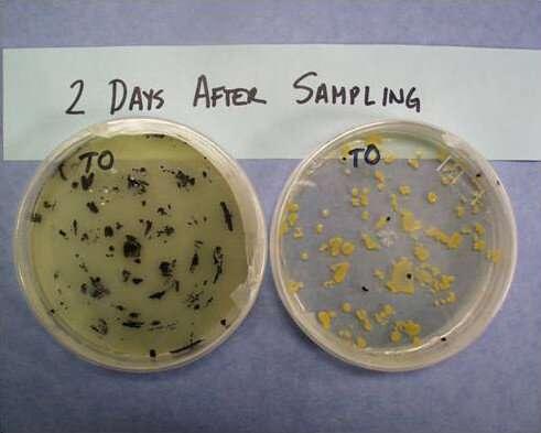 Staph infection turf study yields insight in coronavirus survivability on fields