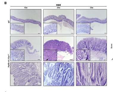 Stomach-specific c-Myc overexpression and gastric cancer