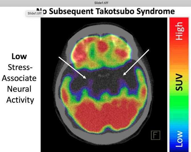 Stressed brain linked to broken heart
