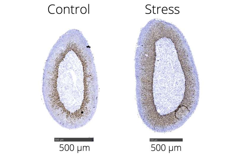 Stress on every cell: Mapping the stress axis in detail