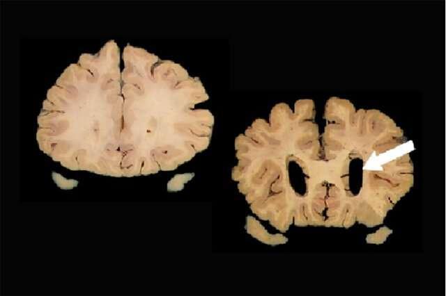 Study evaluates biomarker criteria for assessing Alzheimer's risk