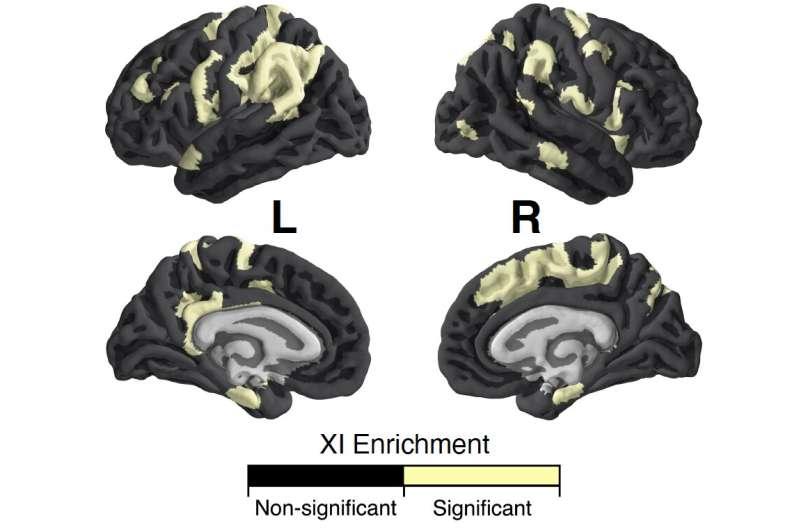Study explores the influence of the X-chromosome on brain anatomy