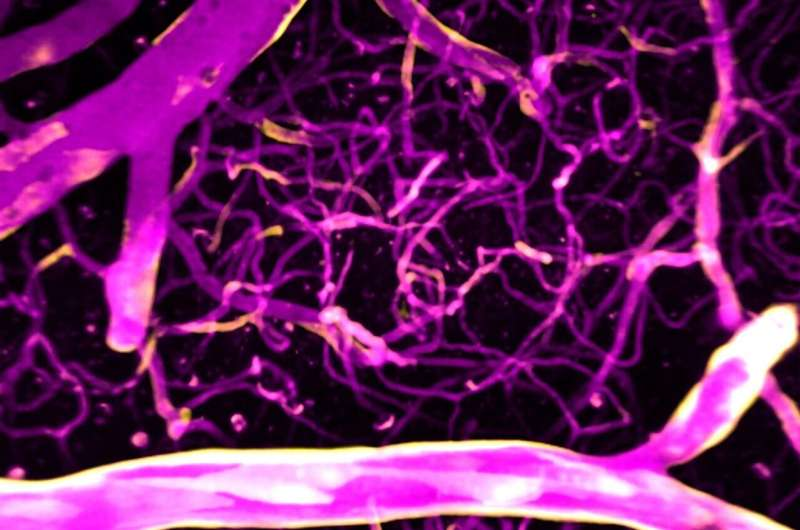 Study finds calcium precisely directs blood flow in the brain