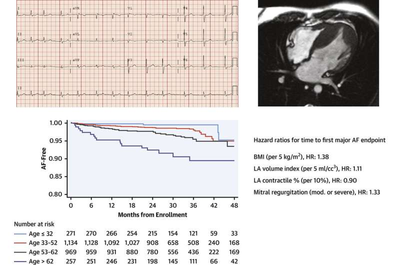 Study IDs risk factors for irregular heartbeats in hypertrophic cardiomyopathy patients