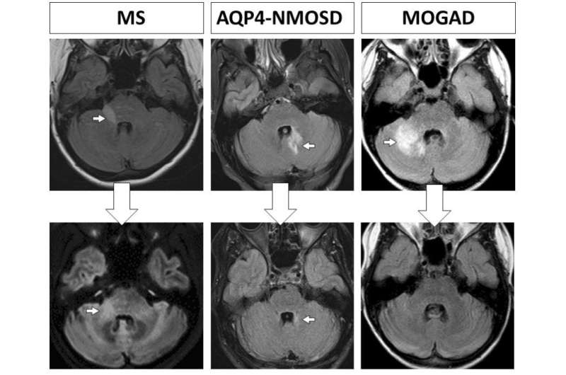 Study may show why multiple sclerosis patients develop progressive disability