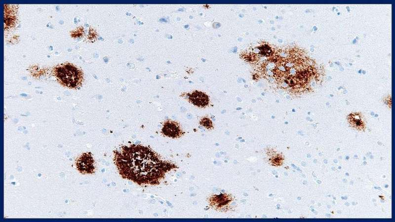 Study says failure to rid amyloid beta protein from brain may lead to Alzheimer's disease