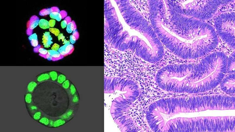 Study Suggests Molecular Changes in Tissue Microenvironment May Promote Colorectal Cancer