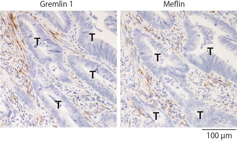 Study finds potential therapeutic targets to inhibit colorectal cancer progression