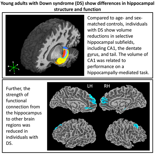 Subtle differences in structure and function of the hippocampus in people with Down syndrome