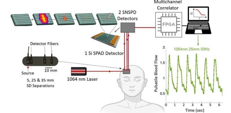 Superconducting nanowire single-photon detectors: Next big thing in blood flow measurement