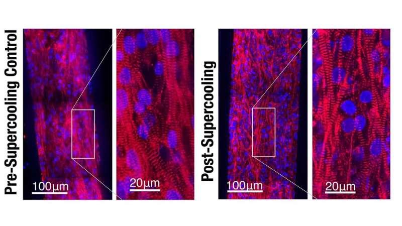 Supercooling advances human tissue preservation
