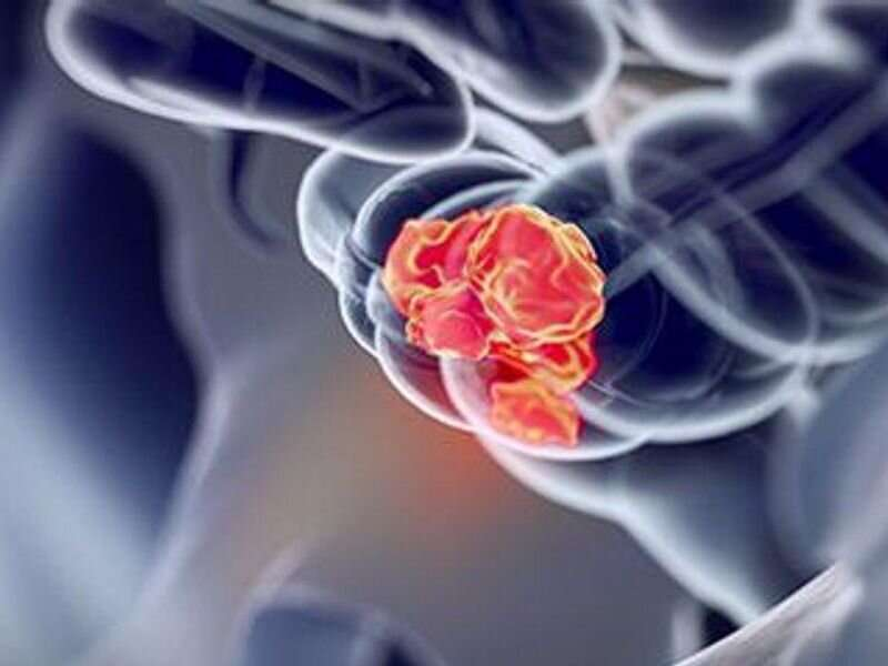 Survival examined for early-onset colorectal cancer