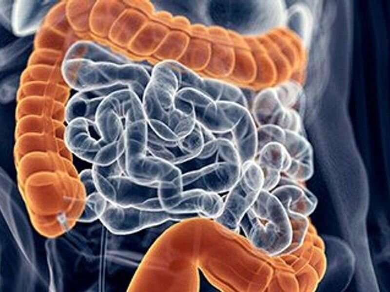 Survival up for colon cancer patients in U.S. military health system