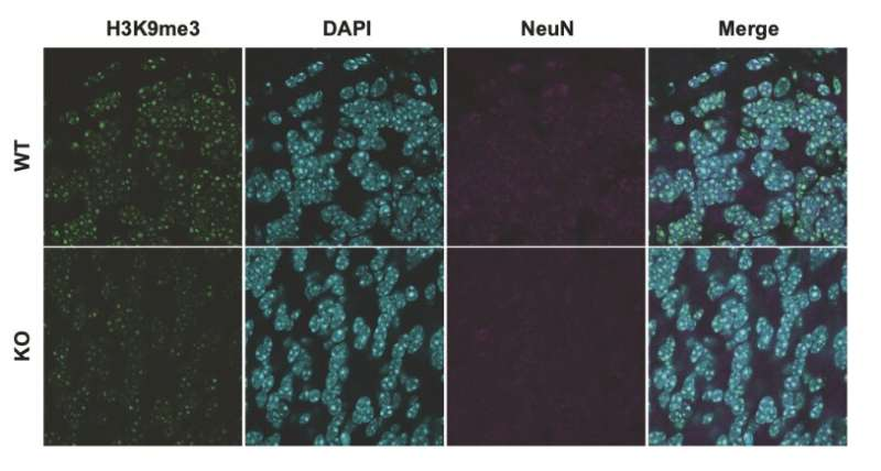 SUV39H2: A direct genetic link to autism spectrum disorders