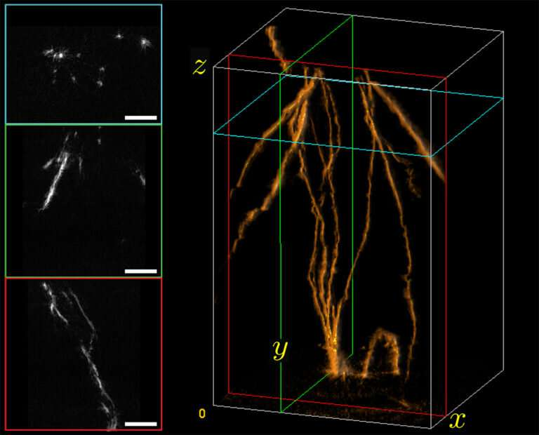 Synergistic collaboration leads to new strategy for biomedical 3D imaging