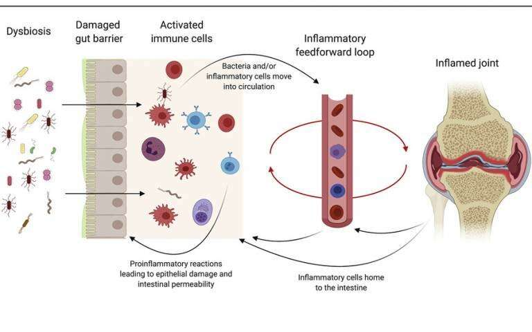 Targeting the gut to relieve rheumatoid arthritis