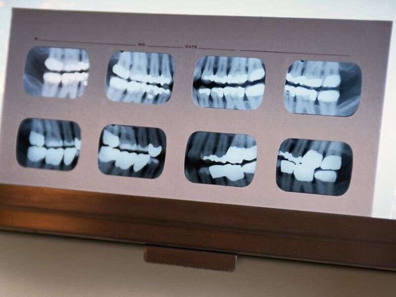 Tense times mean more tooth-grinding, dentists warn