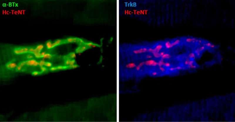 Tetanus toxin fragment may treat depression, Parkinson's disease and ALS
