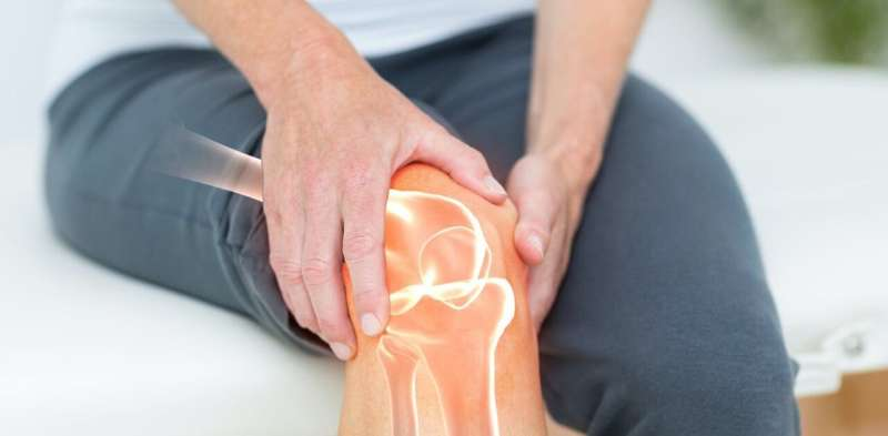 The 3D technology that could revolutionize the treatment of osteoarthritis of the knee thumbnail