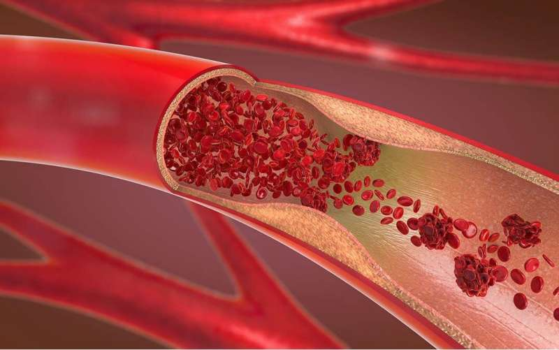 The type of blood vessel damage determines its path to regeneration