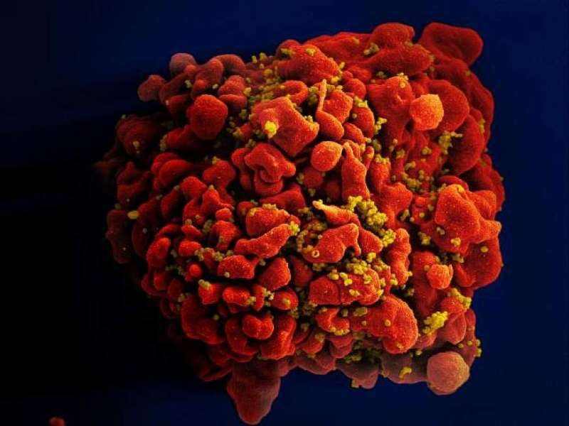 This handout photo made available by the National Institutes of Health shows a human white blood cell infected with the HIV viru