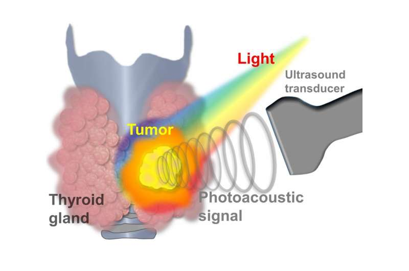 Thyroid cancer now diagnosed with machine learning-powered photoacoustic/ultrasound imaging