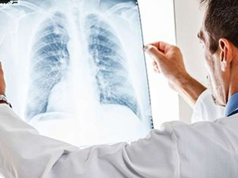 Tislelizumab plus chemo slows advanced squamous NSCLC