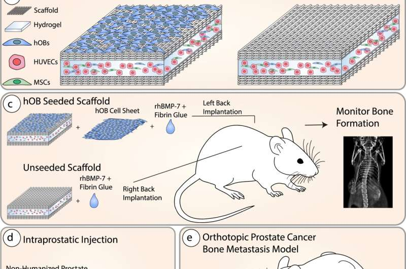 Tissue-engineered prostate tumours shed light on cancer spread