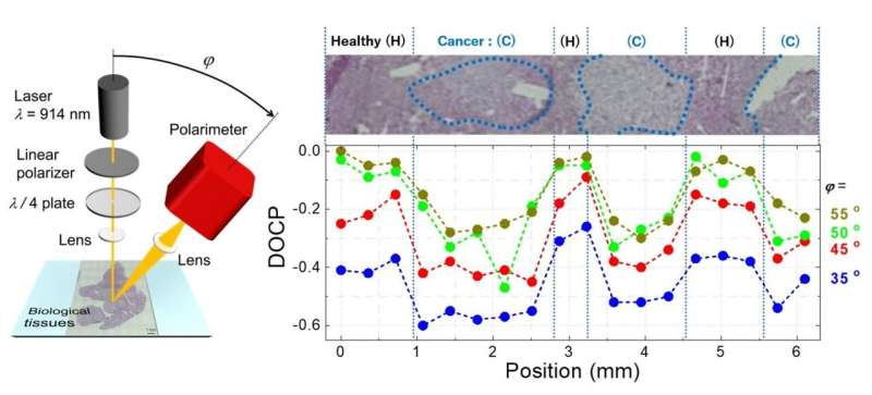 Towards the in vivo detection of cancer progression using circularly polarized LEDs