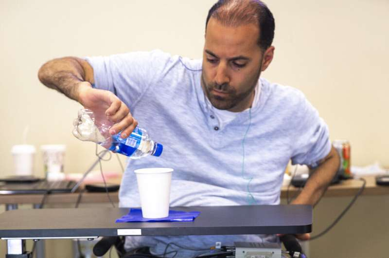 Transcutaneous stimulation improves hand function in people with complete tetraplegia
