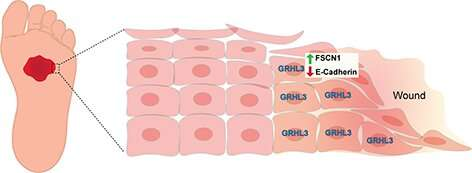UCI-led research uncovers new mechanism that promotes wound healing in skin