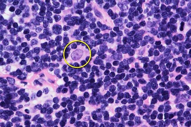Unmarried people given less intensive treatment for mantle cell lymphoma