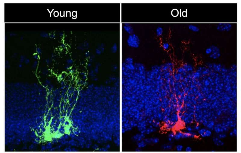 USC Stem Cell study reveals neural stem cells age rapidly