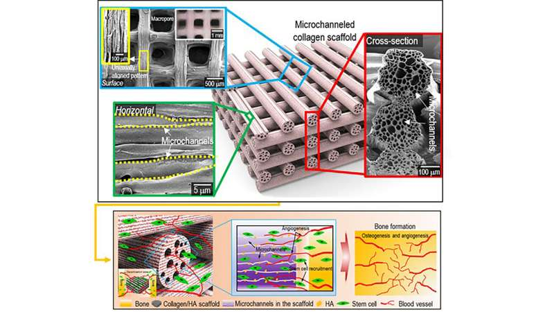 Using 4D printing to enable vascularization, bone tissue regeneration, spinal fusion