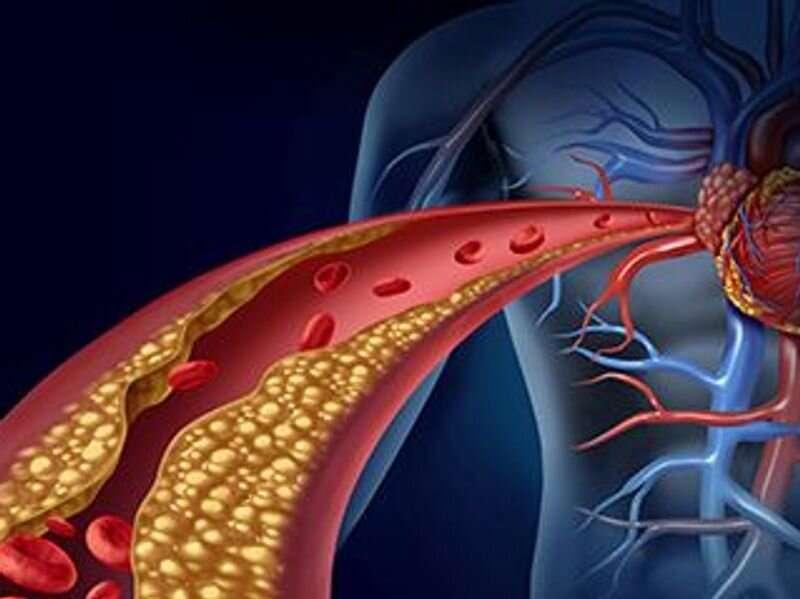 USPSTF advises against screening for asymptomatic carotid artery stenosis