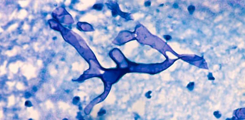 What is mucormycosis, the fungal infection affecting COVID patients in India?