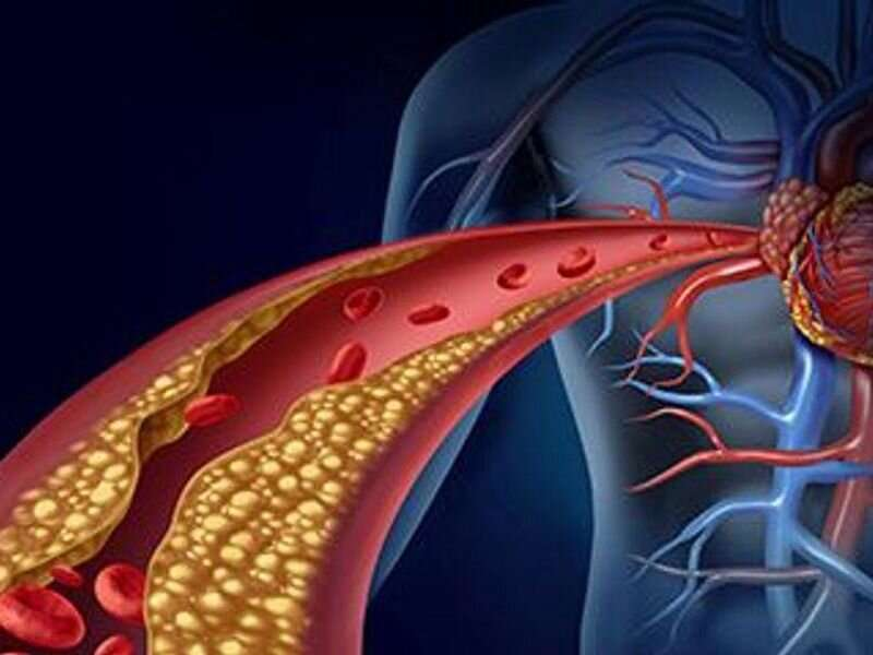 What type of stent did I get, where? most heart patients don't know