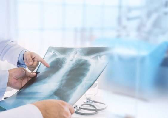 What we've learned about managing COVID-19 pneumonia