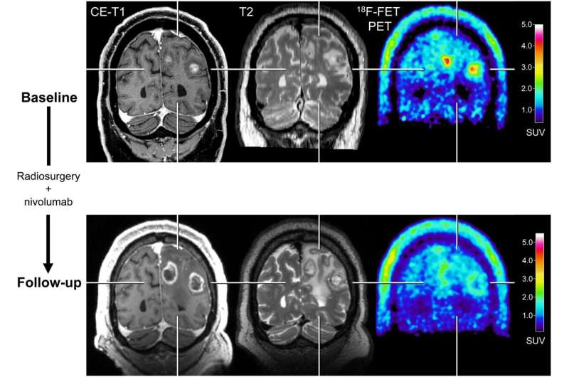 With new treatments, PET imaging adds valuable information to brain metastasis monitoring