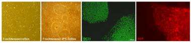 Reprogrammed amniotic fluid cells can generate all types of body cells