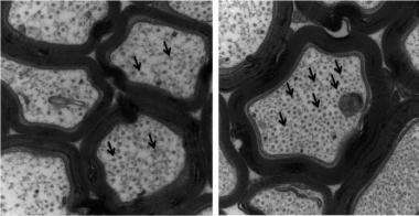 Penn Study Gives Hope for New Class of Alzheimer?s Disease Drugs