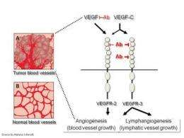 A double block of blood vessels to starve cancerous tumors