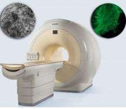 Tracking Neural Stem Cells