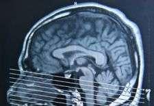New probe promises to reveal brain's mysteries