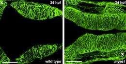 'Relaxation' a critical step in vertebrate brain development
