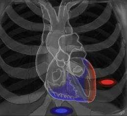 UCLA uses new hybrid, precision heart procedures to help stop deadly arrhythmias